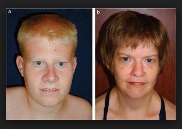 Prader Willi Syndrome Life Expectancy