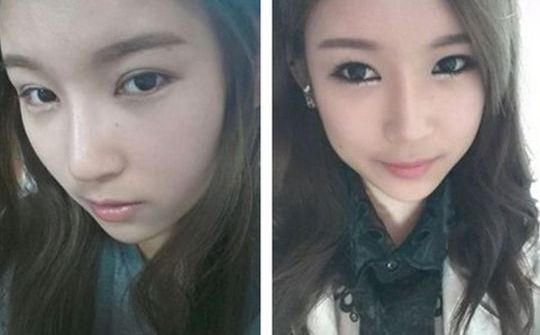 Plastic Surgery Before and After Korean