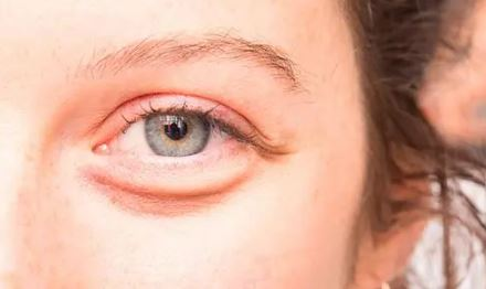 Can Using Compresses Help Reduce Eye Bags