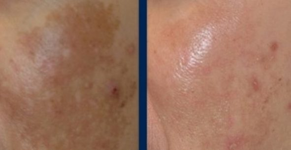 Best Treatment Options for Melasma
