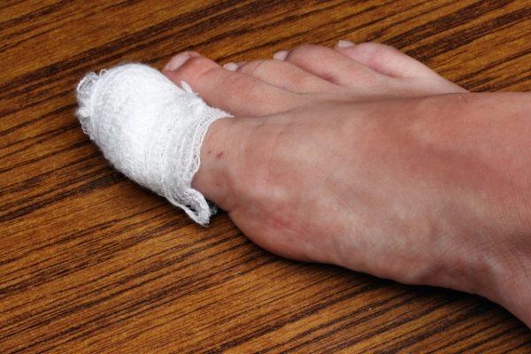 How to Treat Ingrown Nail at Home