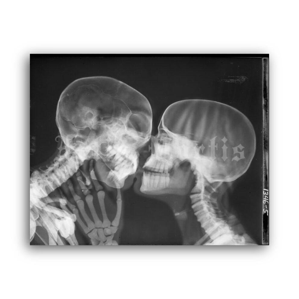 printable x ray kiss kissing skeletons