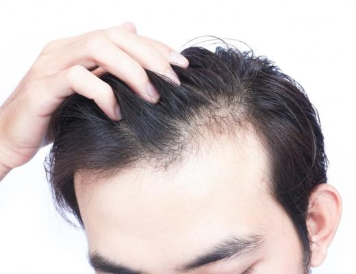 Ask Dr Peirson What Should I Look For When Choosing A Clinic Offering Prp For Hair Loss Artmed