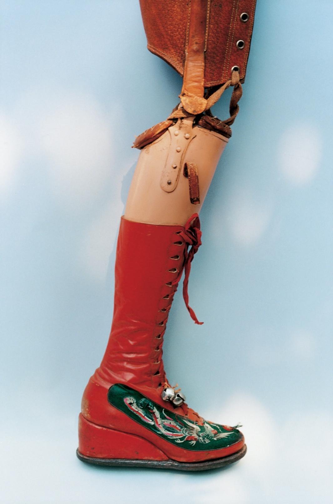 В 1953 году Кало ампутировали ногу. Дизайн протеза она придумала сама, как и красный шнурованный ботинок с бубенчиком
