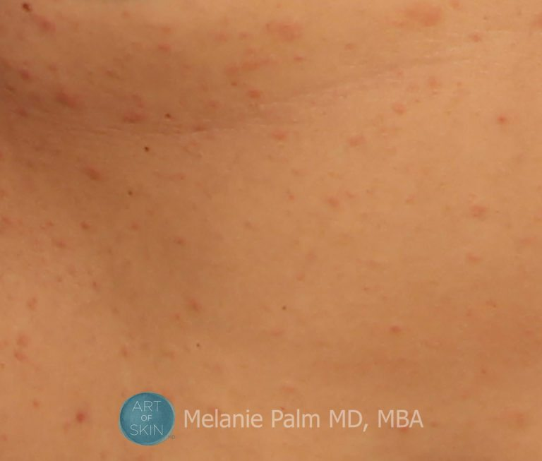 Christmas Tree Rash Pityriasis Rosea