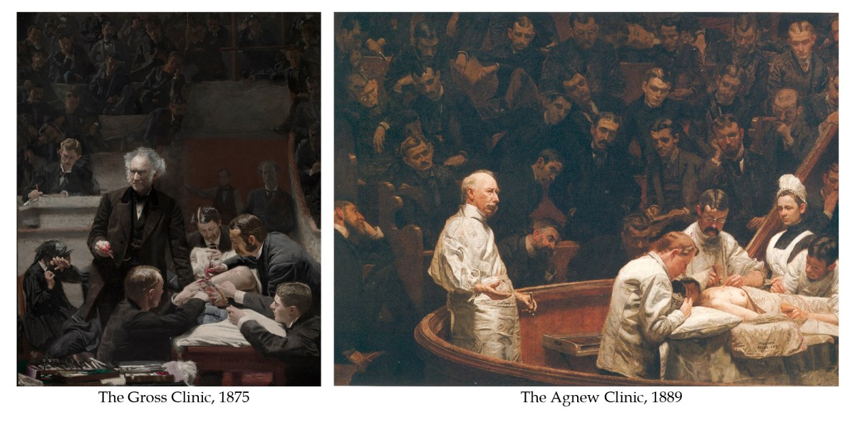 The Gross Clinic and Agnew Clinic by Thomas Eakins