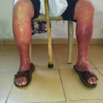 Lesiones en el pie por varices