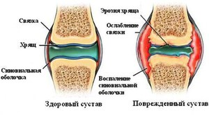 Препараты для роста хрящевой ткани. Восстановление хрящевой ткани тазобедренного сустава