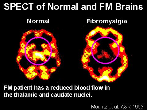 cerebro-fibromialgia