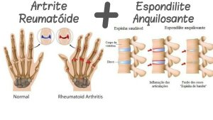 "alt=""Espondilite Anquilosante uma prima da Artrite Reumatoide"""