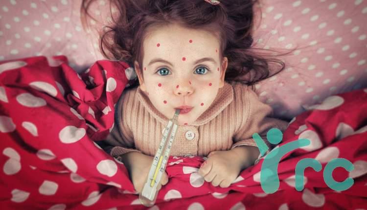 Reumatismo e Sarampo