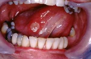 Болезнь Бехчета язвенное поражение слизистой полости рта