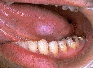 舌癌腫瘍画像2