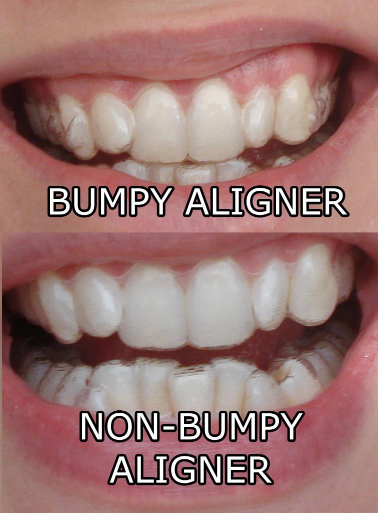 How Should Aligners Fit : should, aligners, Bumpy, Teeth,, Wonders, Aligner, Chewies