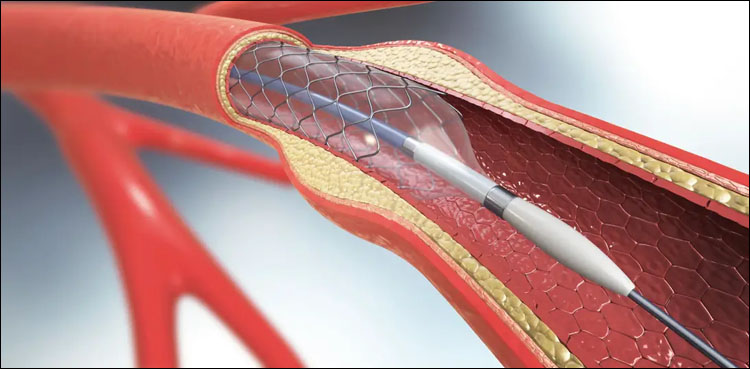 stents, cardiac, NUST, health ministry, catheters