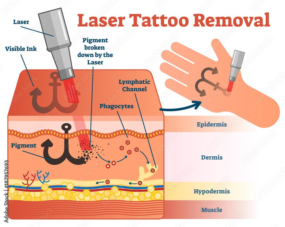 medium resolution of photo art print laser tattoo removal vector illustration diagram europosters