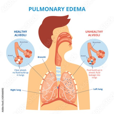 Pulmonary edema - respiratory lung disease infographic with flat cartoon man drawing showing his internal organs