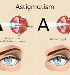 photo art print astigmatism vector diagram with human eye cross section anatomical illustration and difference demonstration of impaired vision and normal  [ 1000 x 789 Pixel ]
