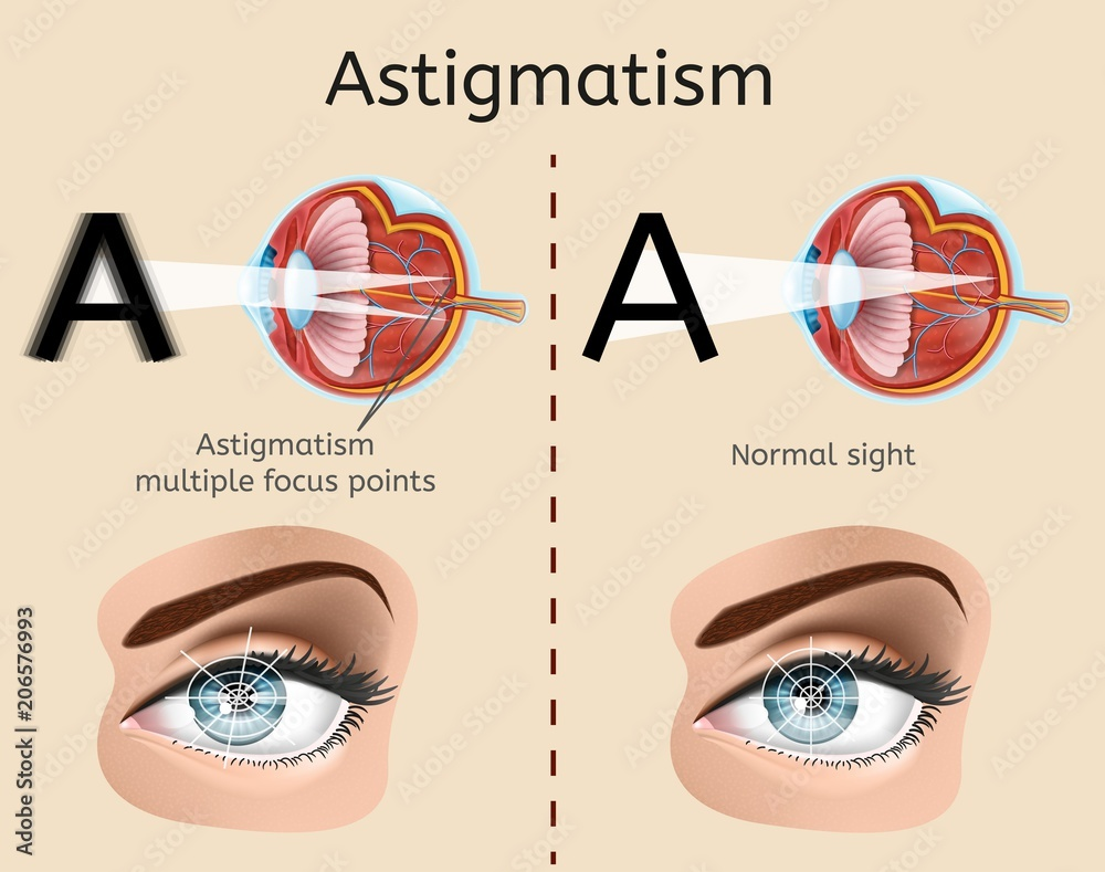 hight resolution of photo art print astigmatism vector diagram with human eye cross section anatomical illustration and difference demonstration of impaired vision and normal