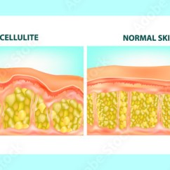 Skin Cross Section Diagram Ford Model T Wiring Illustration Of Cellulite Formation Vector