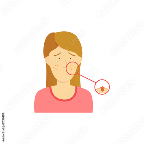 acne face diagram electrical home wiring brown hair girl woman with detail on illustration