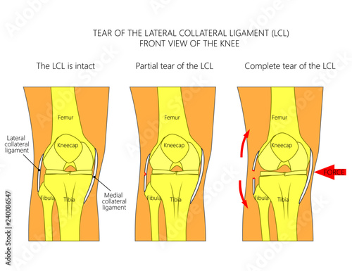 front leg ligament diagram 05 ford f150 radio wiring vector illustration anatomy of a knee joint with healthy ligaments and sprain tear rupture lateral collateral view straight