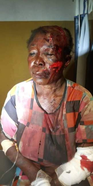 Sumpini woman accused of witchcraft