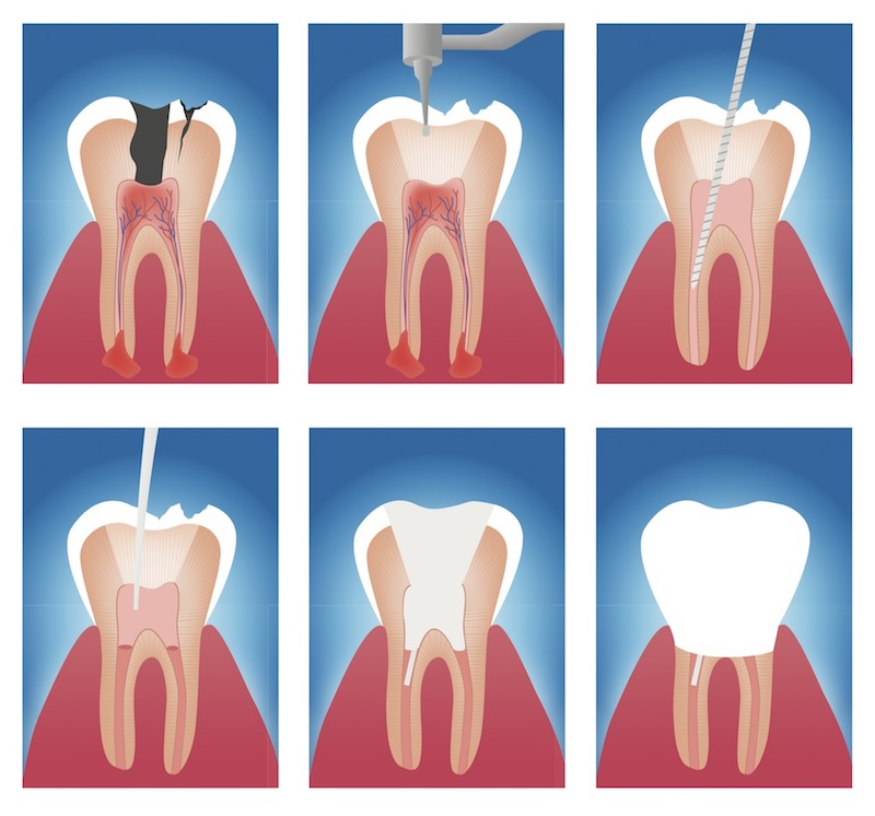 The Art of Endodontics - Endodontists for Root Canal Treatment