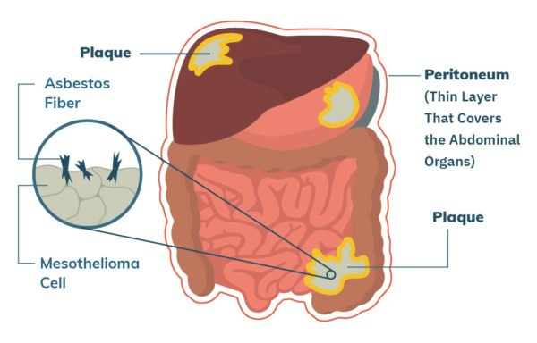 Organs Affected by Peritoneal Mesothelioma