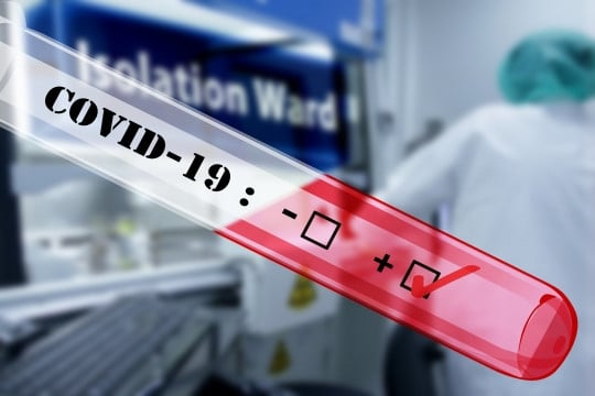 Experimental drug, Remdesivir proves effective against Coronavirus - New US Study shows 1