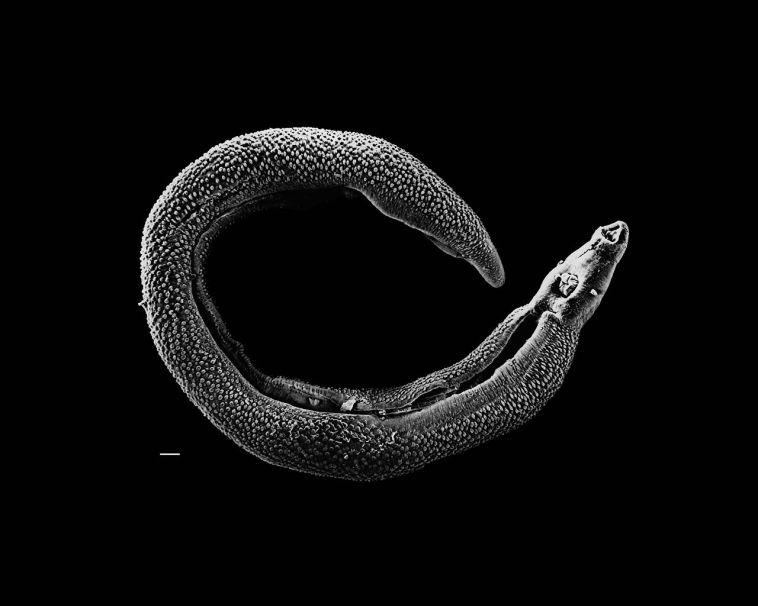 Schistosoma 20041-300