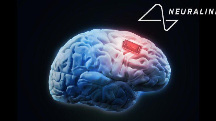Elon Musk Neuralink cover