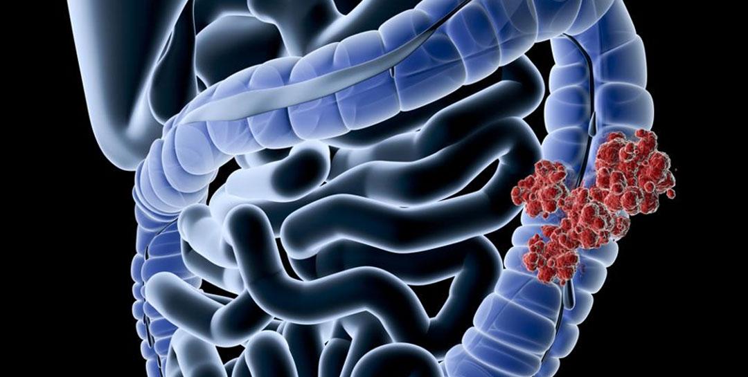 REAL Microbiome Fecal kit