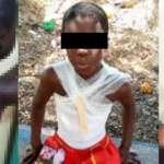 Kasoa: 10-year-old boy who was set ablaze by 14-year-old boy speaks