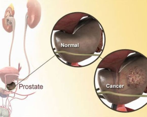 Prostate cancer