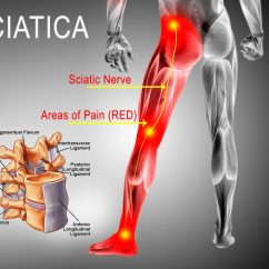 Diagram Of Sciatic Nerve Leg 3way Switch Wiring Sciatica Advanced Sports And Family Chiropractic Acupuncture