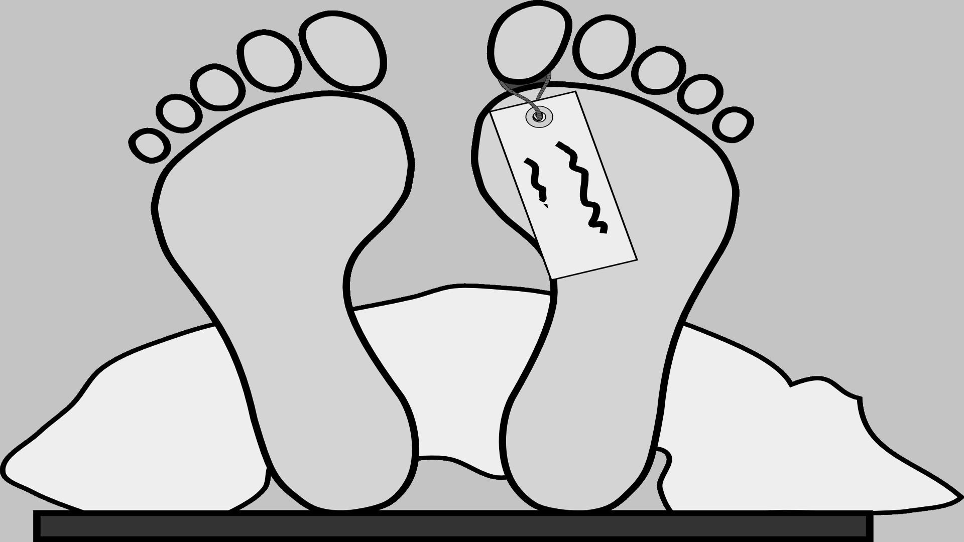 La autopsia tambien llamada examen post mortem o necropsia 1920