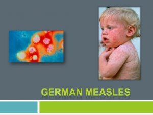 Asal usul, Penyebab, Gejala, bahaya, dan Pencegahan German Measles (Campak Jerman)