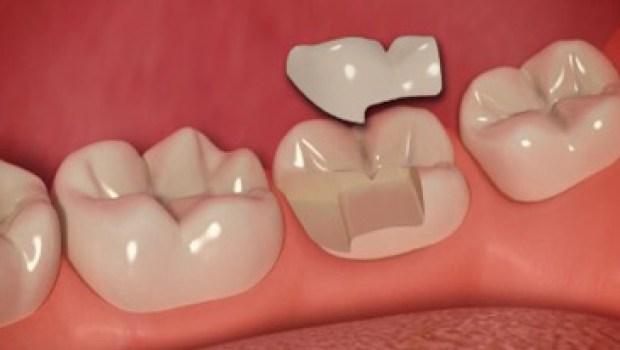 Cerec Onlay One-Day Dental
