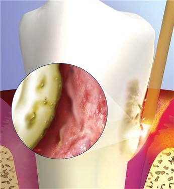 Asheville Gum Treatment