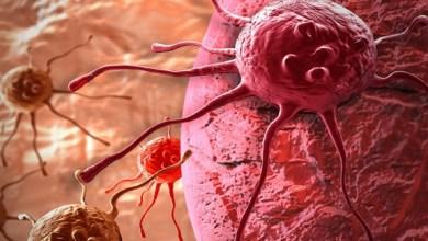 Photo of ماهي الأغذية التي تحمي من سرطان البروستاتا؟