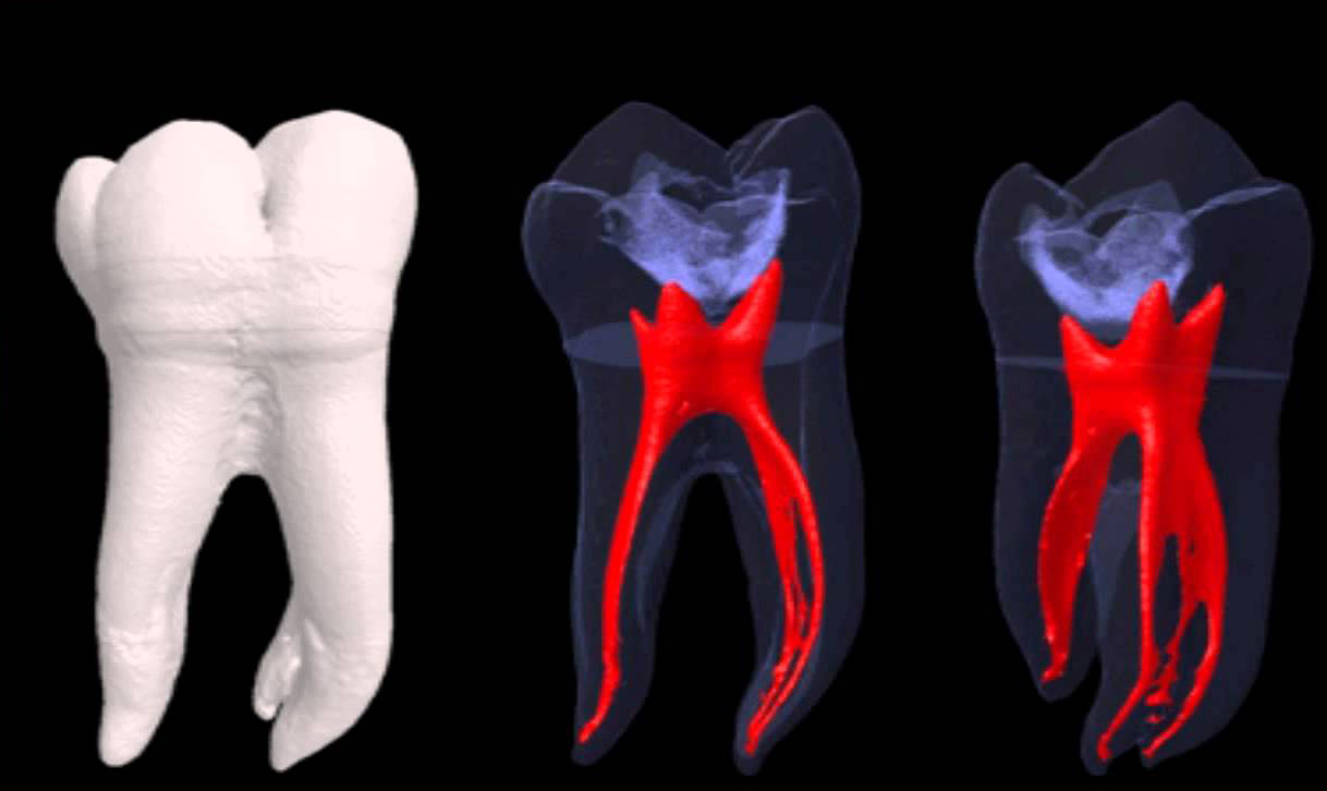 ROOT CANAL TREATMENT – Ashurst