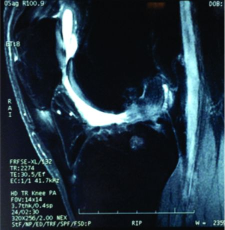 Figure 4 & 5: Ruptured LARS with Secondary arthritis of the knee joint evident on MRI films