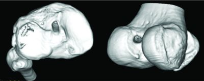 Figure 4: Three-dimensional CT image demonstrating the tibial (image on the left) and femoral (image on the right) tunnel placement in single-bundle ACL reconstruction.