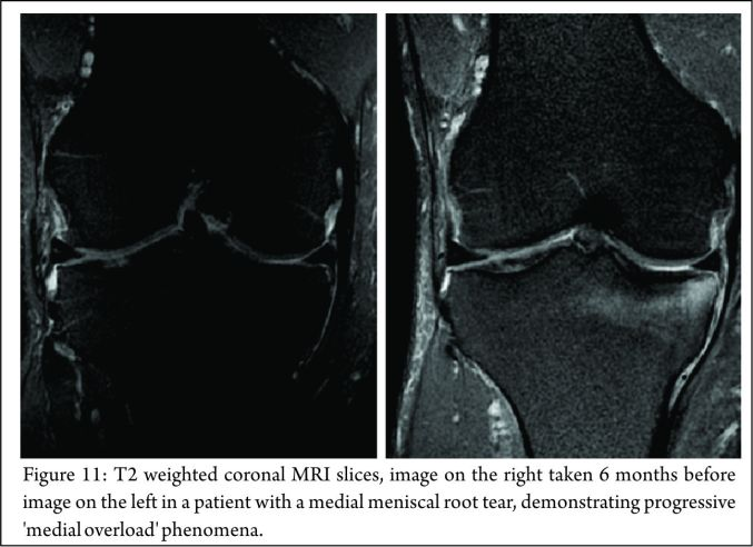 Meniscal Root Tears: Current Concepts | Asian Journal of