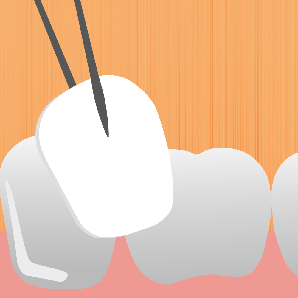 Image For Porcelain Veneers Page