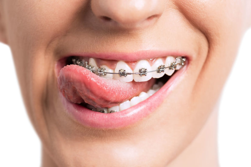 featured image for orthodontist in manila
