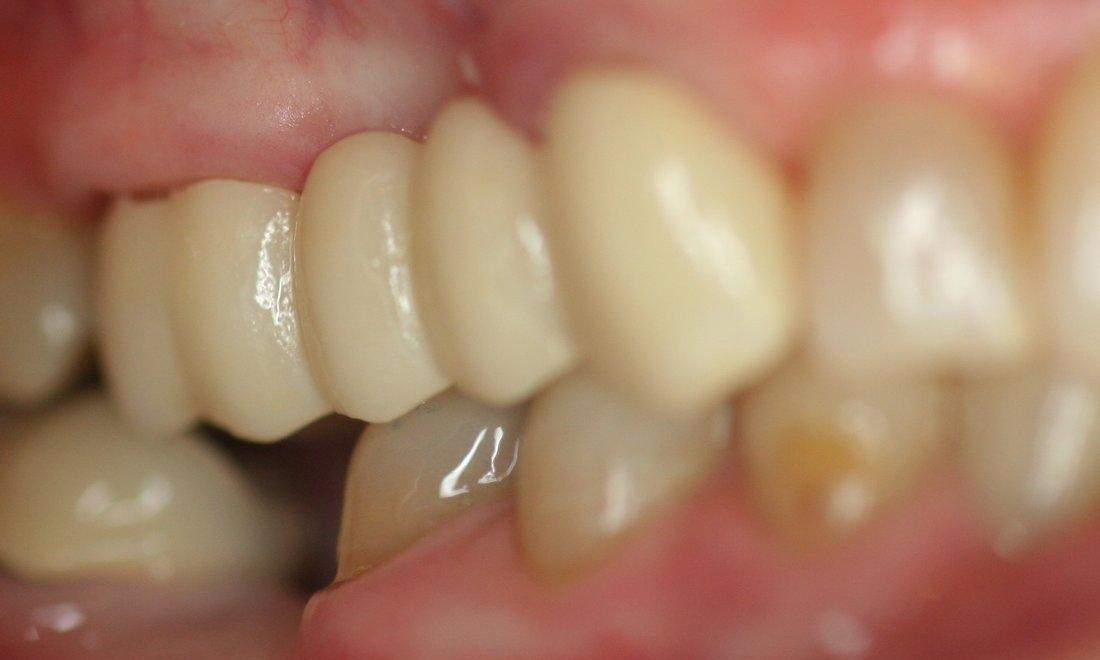 featured image for what is a dental bridge