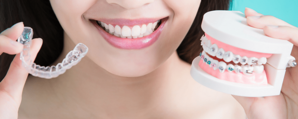 How much are braces in the philippines asian sun dental clinic image for how much are braces in the philippines solutioingenieria Image collections