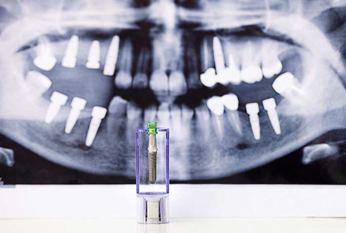 image for dental implants in the Philippines